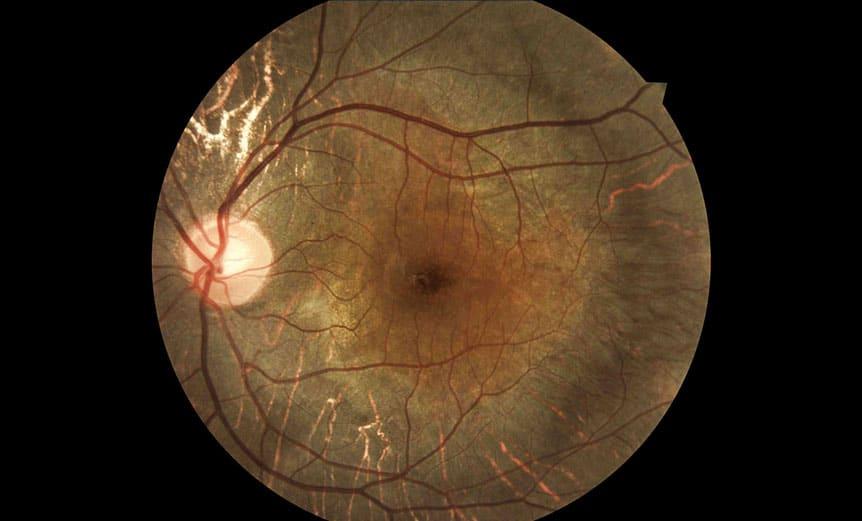 Digital retinal photography-Choroideremia